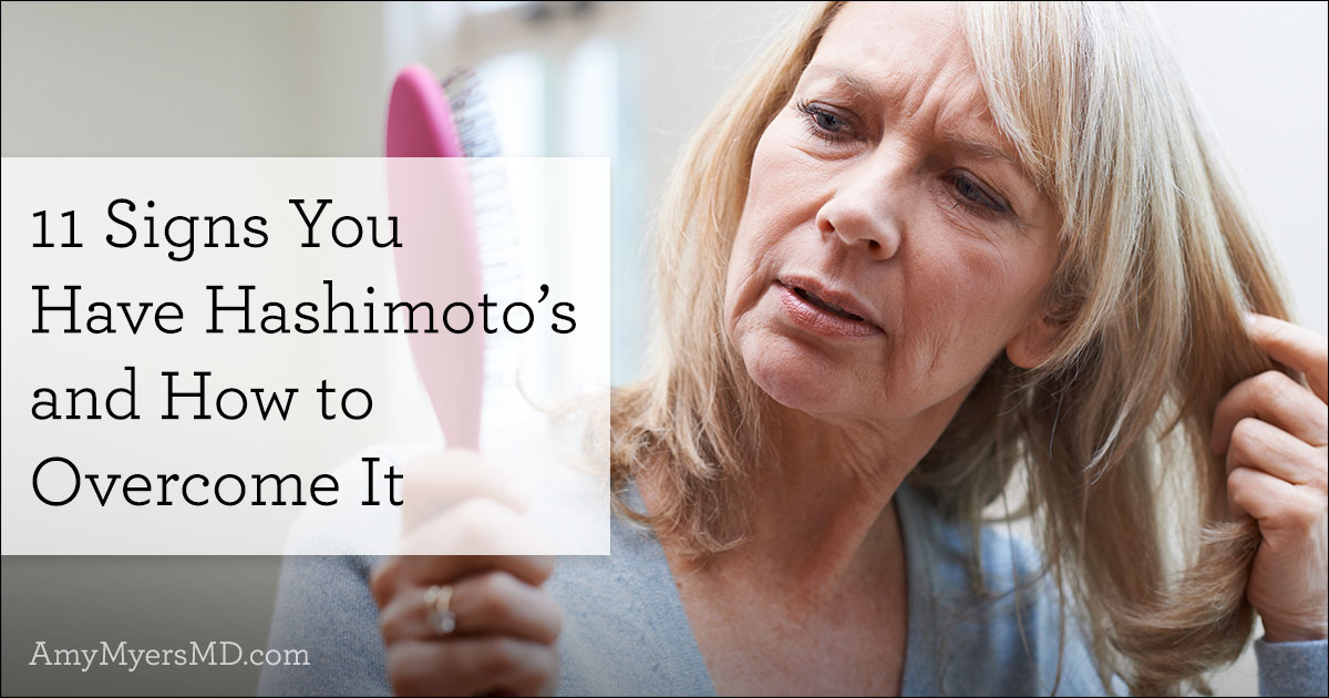 11 signs you have hashimoto's