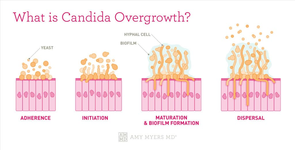 What Is Candida Overgrowth? - Four Stages of Candida Growth In The Gut Lining - Infographic - Amy Myers MD®