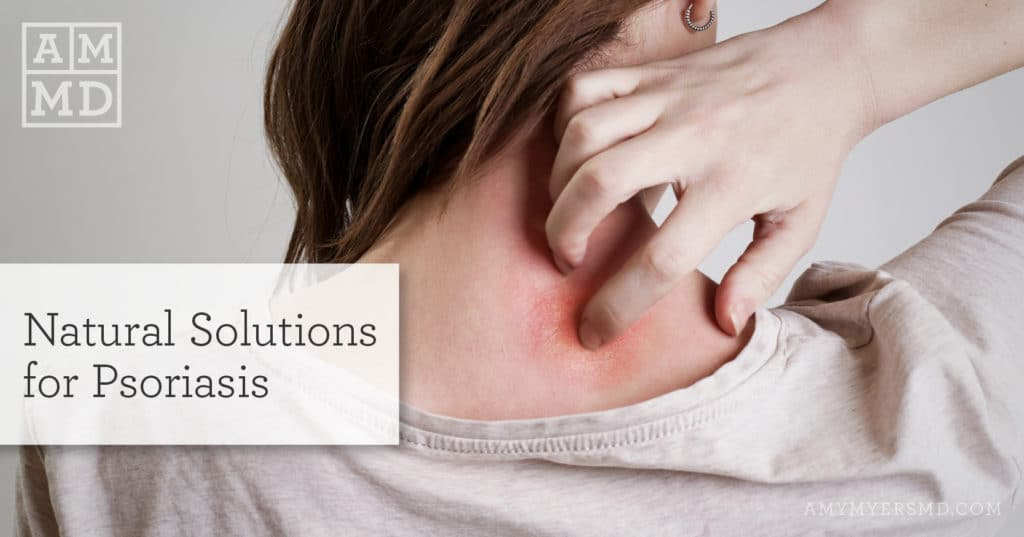 Natural Solutions for Psoriasis