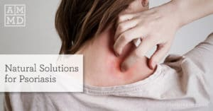 Natural Psoriasis Treatment from the Inside Out