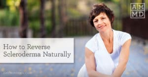 How to Reverse Scleroderma Naturally