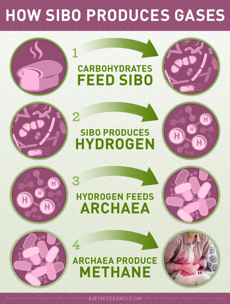 How SIBO Produces Gases and Causes Bloating - Infographic - Amy Myers MD