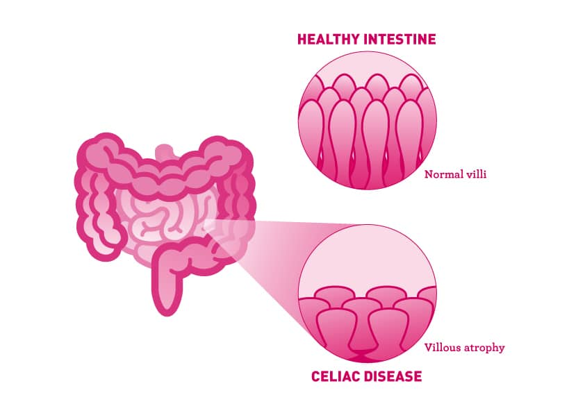 Celiac Disease - Infographic - Amy Myers MD