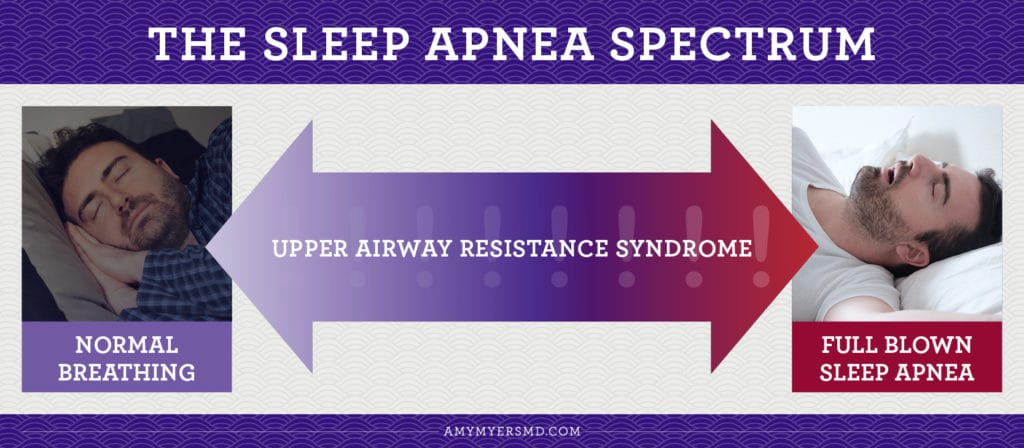 the Sleep Apnea Spectrum - Infographic - Amy Myers MD®