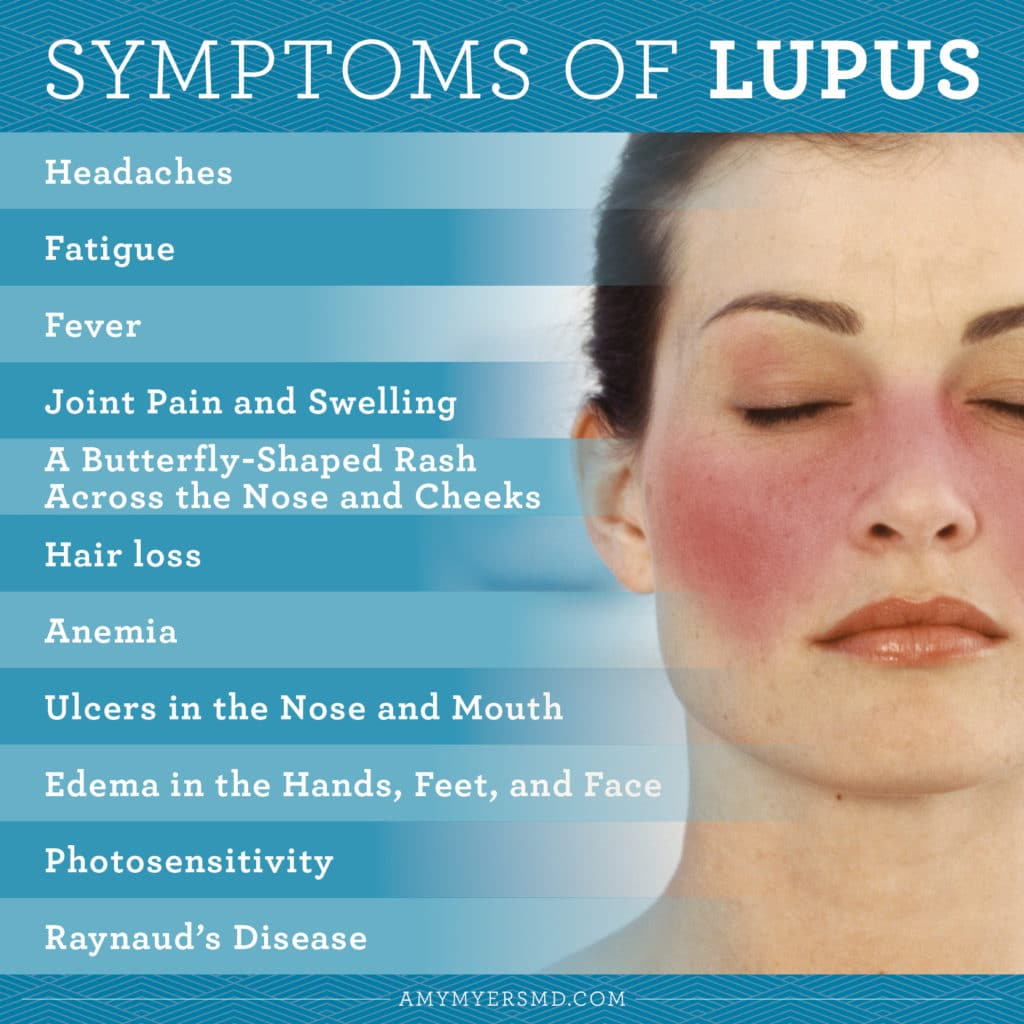 Symptoms of Lupus - Infographic - Amy Myers MD®