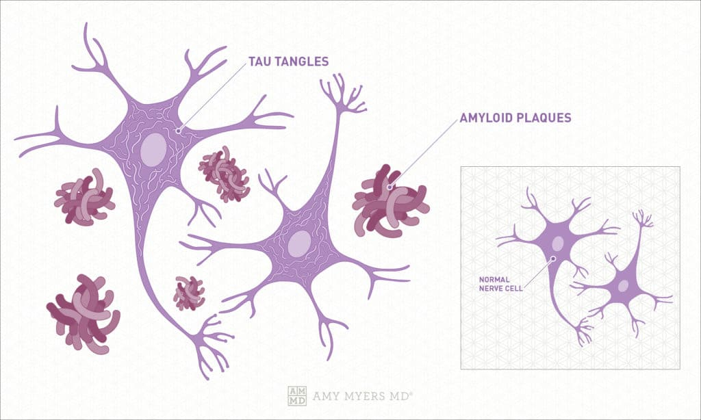 What Is Alzheimer's? Tau Tangles, Amyloid Plaques - Infographics - Amy Myers MD®
