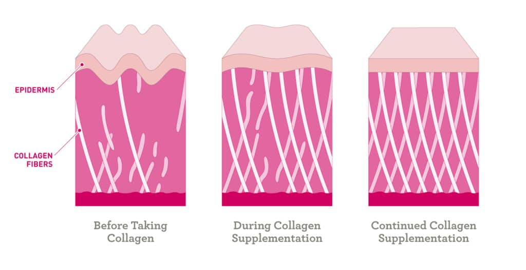 infographic of before, during, and continued collagen supplementation