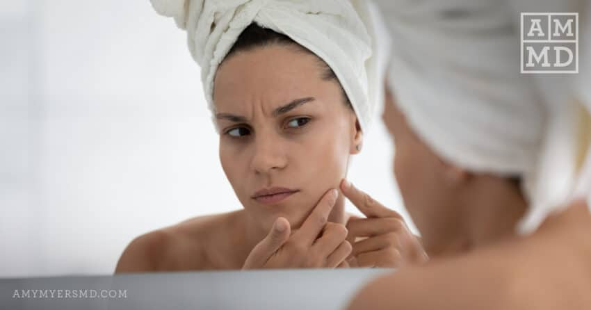 Does Hormone Replacement Therapy Cause Adult Acne?